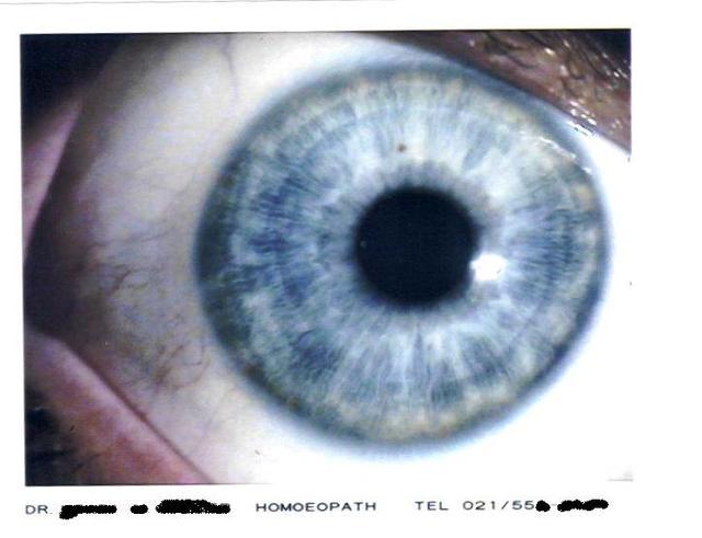 My_eye2_2